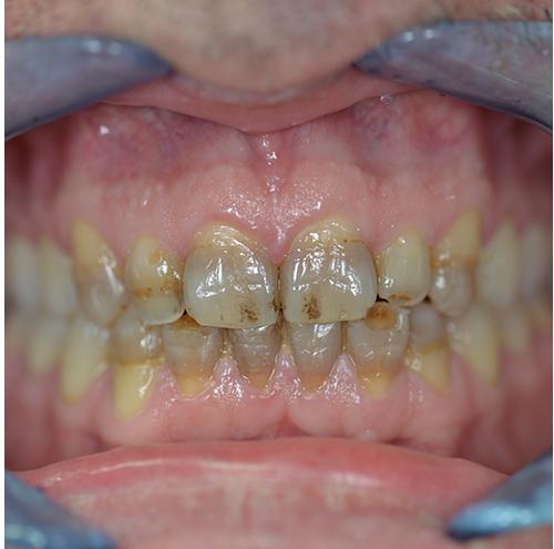 Zahnarzt Spandau - Zähne vor der Behandlung