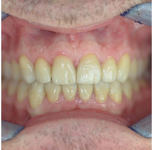 Zahnarzt Spandau - Zähne nach der Behandlung